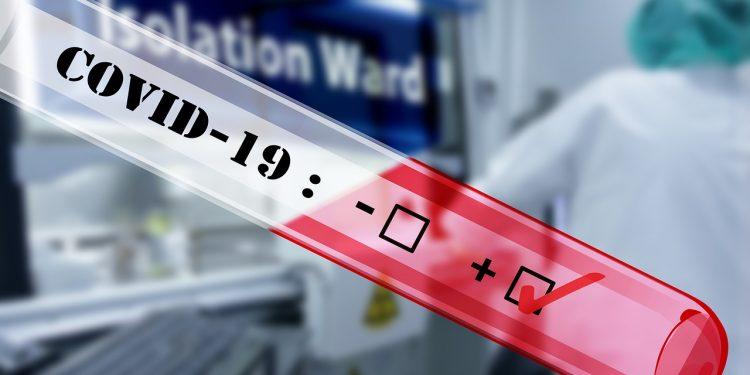 Nesta segunda (5),  28.645 novos diagnósticos positivos  foram confirmados pelas autoridades. Foto: Arquivo