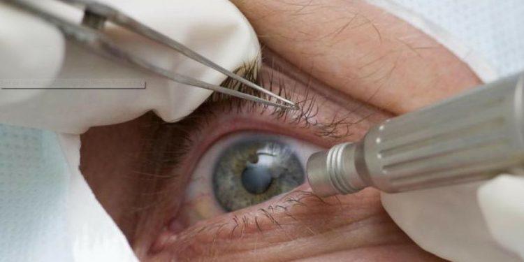 Glaucoma: dado preocupante foi divulgado pela Sociedade Brasileira de Oftalmologia - Foto: Divulgação/Agência Brasil/ Pref. Tres Barras (SC)