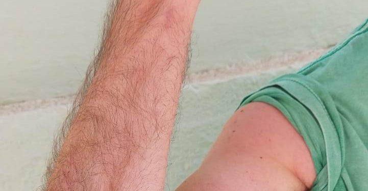 Professor diz ter sido agredido no Oba:  vítima alega que teve lesões no braço direito e no pescoço - Foto: Divulgação